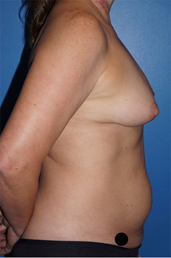 Liposuction Gallery - Patient 5227155 - Image 1