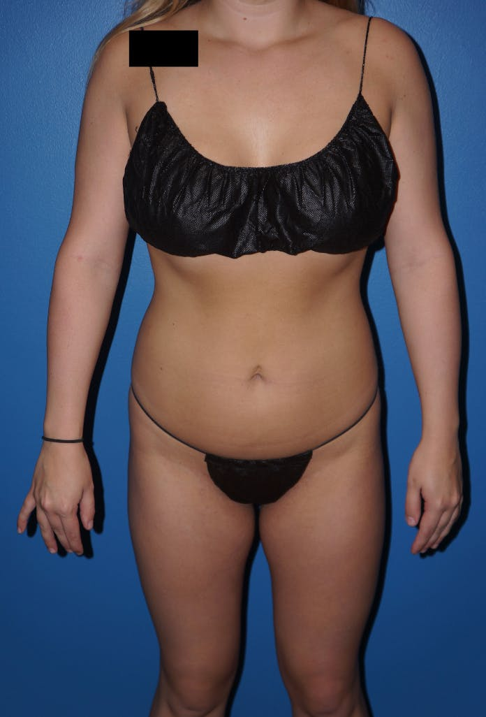 Liposuction Gallery - Patient 5227157 - Image 1