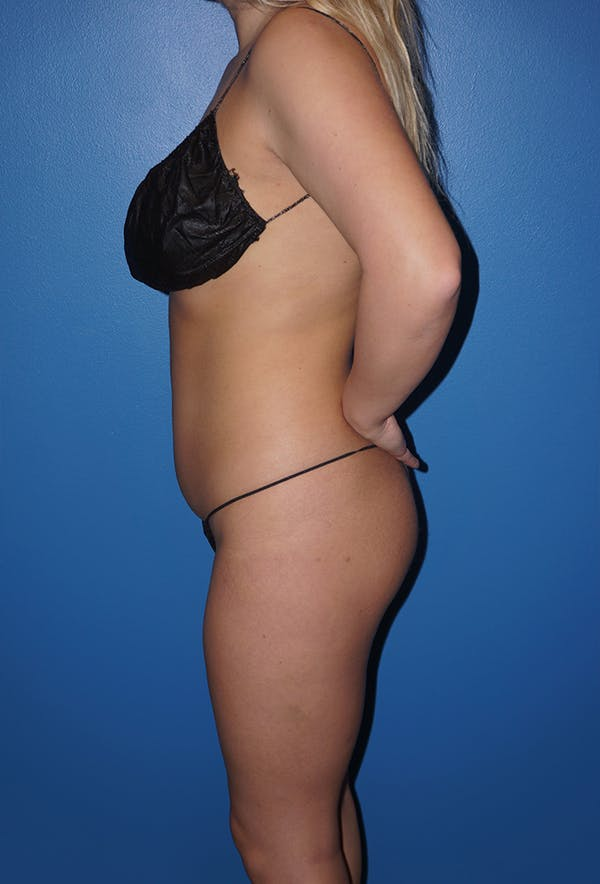 Liposuction Gallery - Patient 5227157 - Image 5