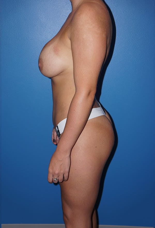 Liposuction Gallery - Patient 5227157 - Image 6