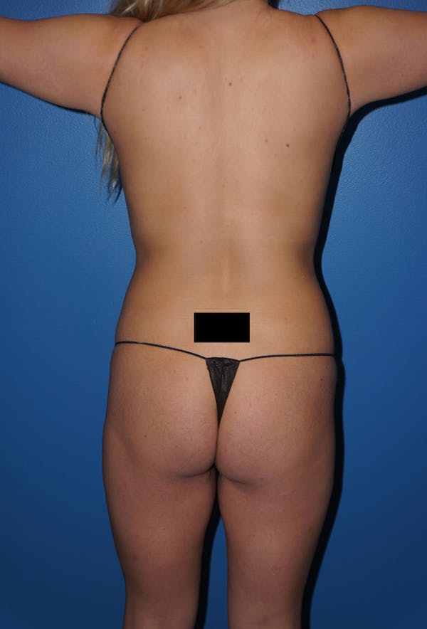 Liposuction Gallery - Patient 5227157 - Image 7
