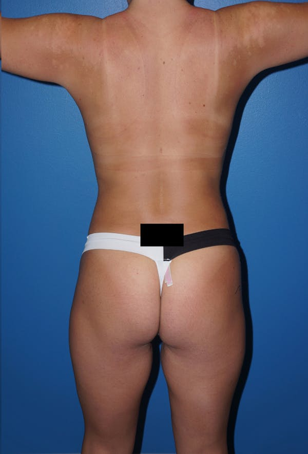 Liposuction Gallery - Patient 5227157 - Image 8