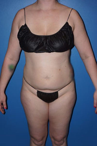 Liposuction Gallery - Patient 5227163 - Image 9