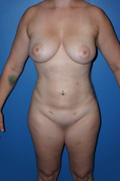 Liposuction Gallery - Patient 5227163 - Image 2