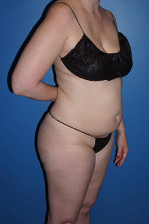 Liposuction Gallery - Patient 5227163 - Image 3