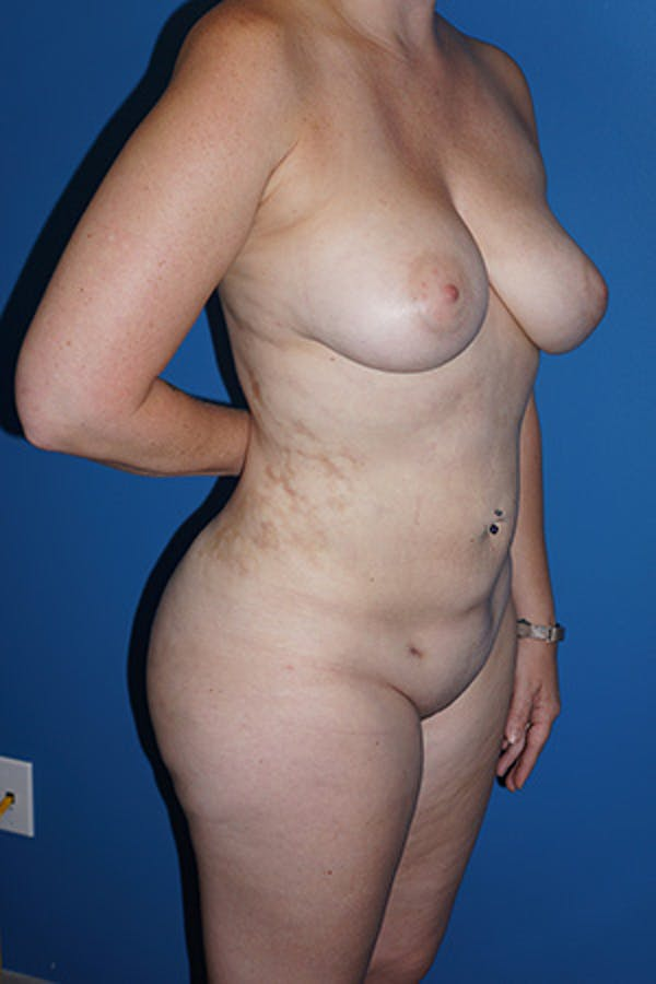 Liposuction Gallery - Patient 5227163 - Image 4