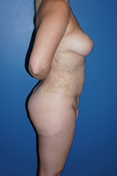 Liposuction Gallery - Patient 5227163 - Image 6