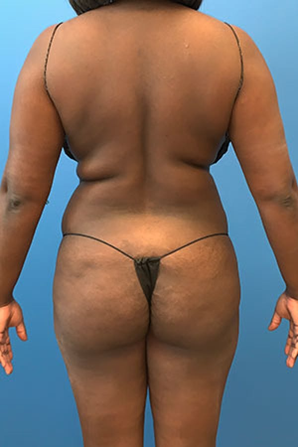 Liposuction Gallery - Patient 5227165 - Image 1