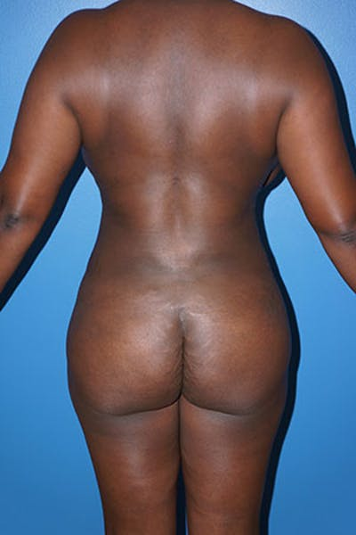 Liposuction Gallery - Patient 5227165 - Image 2