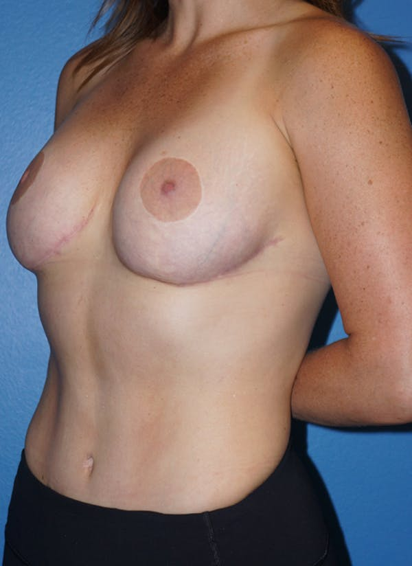 Tummy Tuck Gallery - Patient 5227193 - Image 4
