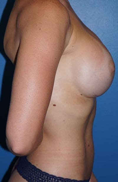 Breast Augmentation Gallery - Patient 5226542 - Image 6