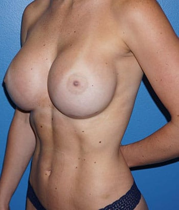 Breast Augmentation Gallery - Patient 5226542 - Image 4