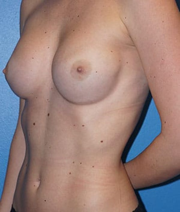Breast Augmentation Gallery - Patient 5226542 - Image 3