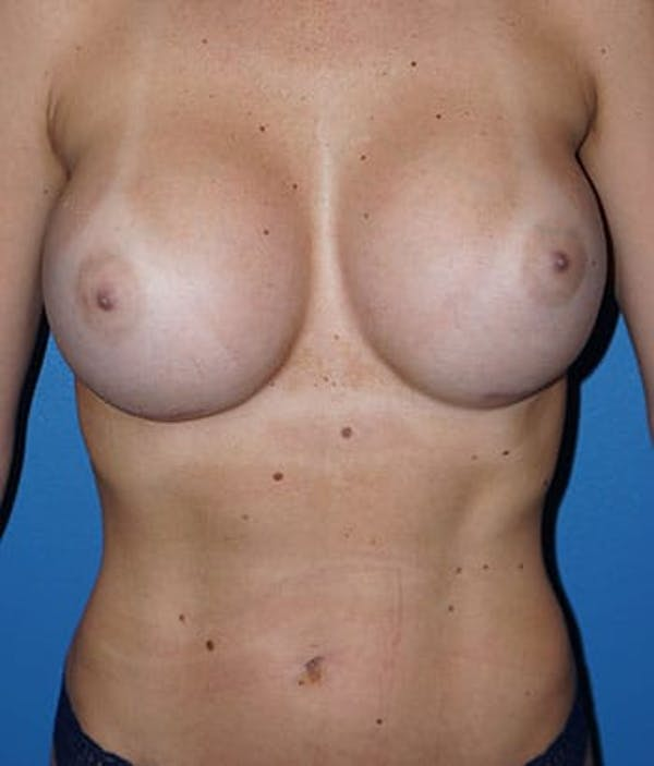 Breast Augmentation Gallery - Patient 5226542 - Image 2