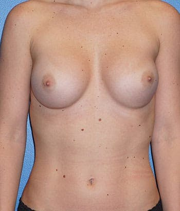 Breast Augmentation Gallery - Patient 5226542 - Image 1