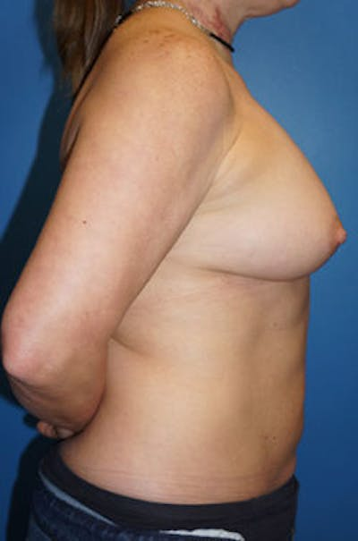 Breast Augmentation Gallery - Patient 5227282 - Image 2