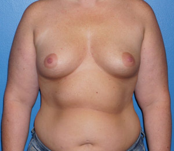 Breast Augmentation Gallery - Patient 5227283 - Image 1