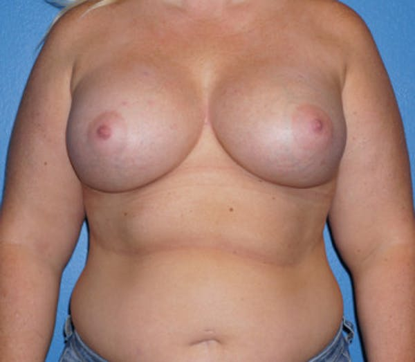 Breast Augmentation Gallery - Patient 5227283 - Image 2