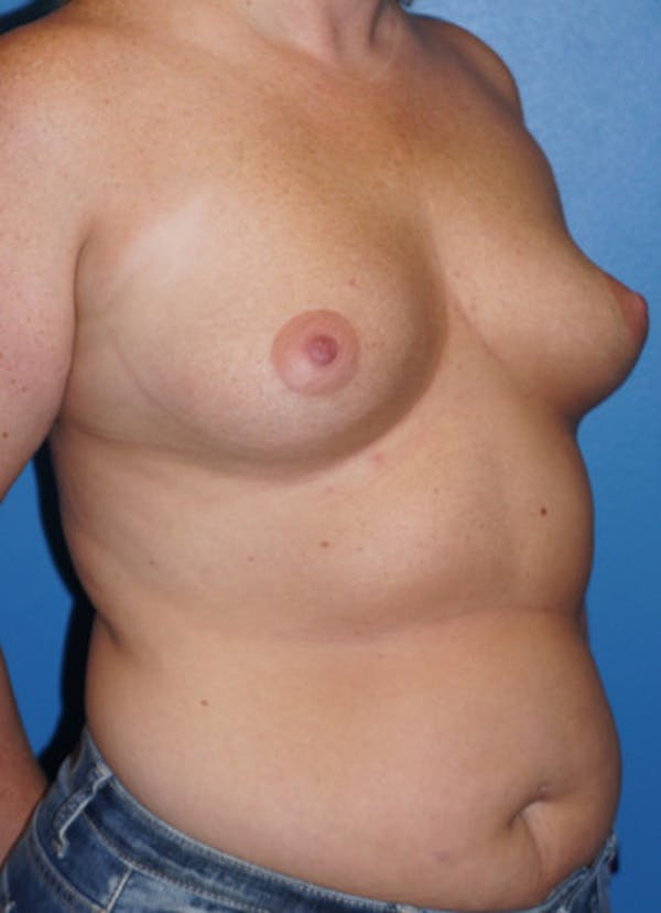 Breast Augmentation Gallery - Patient 5227283 - Image 3