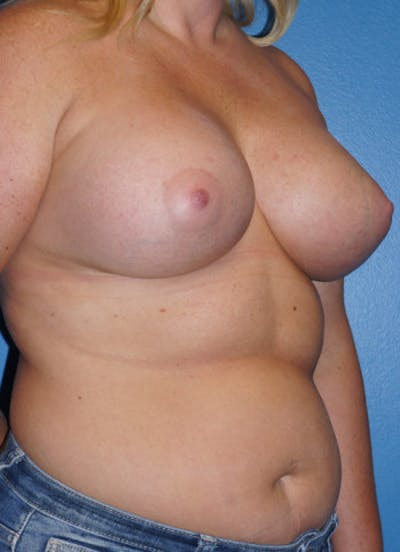 Breast Augmentation Gallery - Patient 5227283 - Image 4
