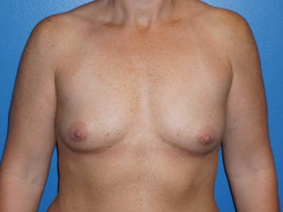 Breast Augmentation Gallery - Patient 5227284 - Image 1