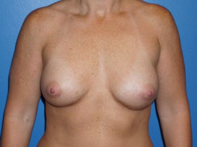 Breast Augmentation Gallery - Patient 5227284 - Image 2