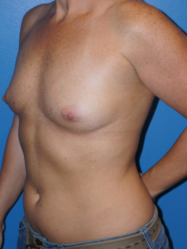 Breast Augmentation Gallery - Patient 5227284 - Image 3