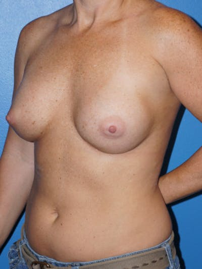 Breast Augmentation Gallery - Patient 5227284 - Image 4