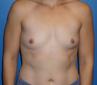 Breast Augmentation Gallery - Patient 5227287 - Image 1