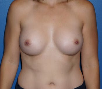 Breast Augmentation Gallery - Patient 5227287 - Image 2