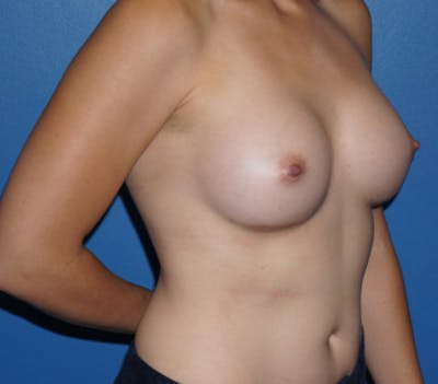 Breast Augmentation Gallery - Patient 5227287 - Image 4