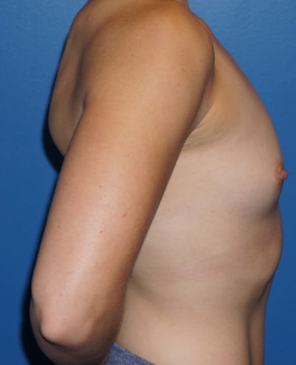 Breast Augmentation Gallery - Patient 5227287 - Image 5