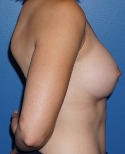 Breast Augmentation Gallery - Patient 5227287 - Image 6