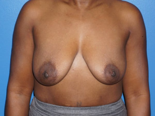 Breast Augmentation Gallery - Patient 5227288 - Image 1