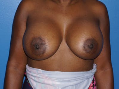 Breast Augmentation Gallery - Patient 5227288 - Image 2