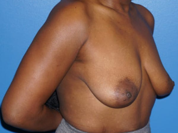Breast Augmentation Gallery - Patient 5227288 - Image 3