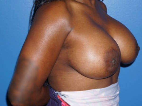 Breast Augmentation Gallery - Patient 5227288 - Image 4