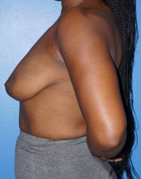Breast Augmentation Gallery - Patient 5227288 - Image 5