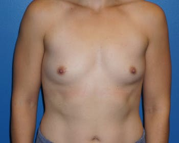 Breast Augmentation Gallery - Patient 5227289 - Image 1