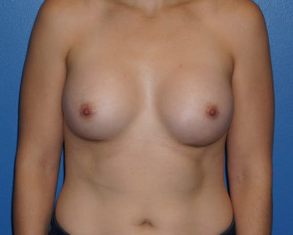 Breast Augmentation Gallery - Patient 5227289 - Image 2