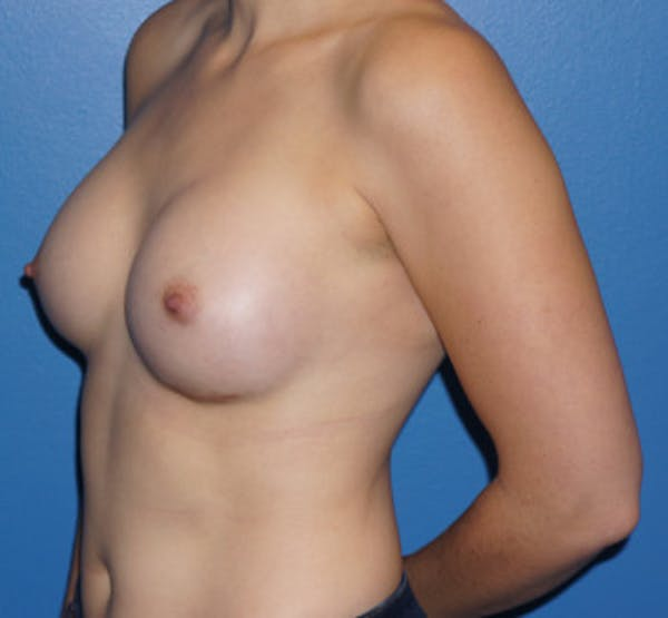Breast Augmentation Gallery - Patient 5227289 - Image 4