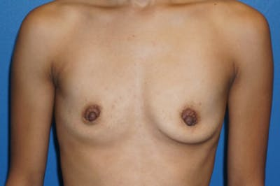 Breast Augmentation Gallery - Patient 5227290 - Image 3