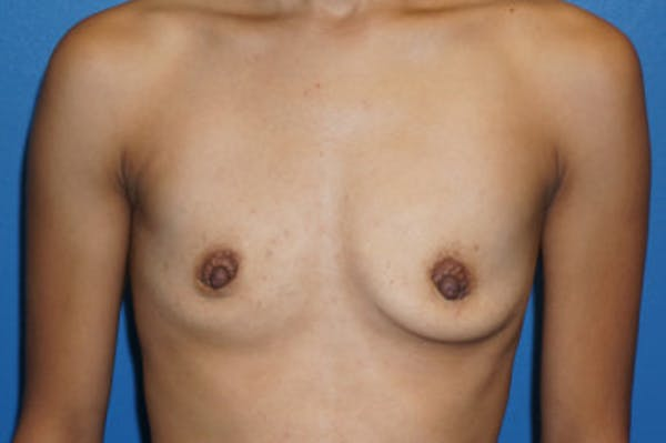 Breast Augmentation Gallery - Patient 5227290 - Image 1