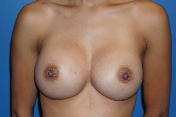 Breast Augmentation Gallery - Patient 5227290 - Image 2