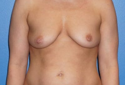 Breast Augmentation Gallery - Patient 5227291 - Image 5
