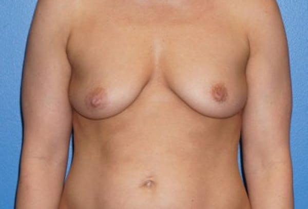 Breast Augmentation Gallery - Patient 5227291 - Image 1