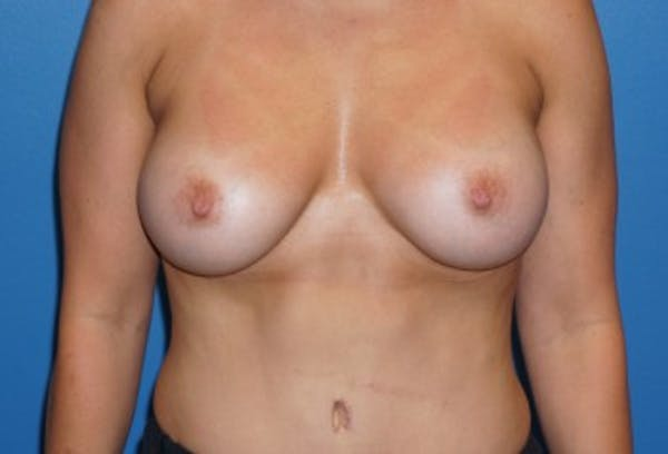 Breast Augmentation Gallery - Patient 5227291 - Image 2