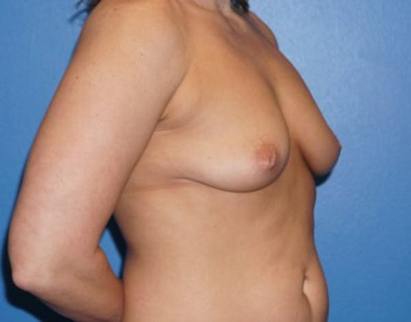 Breast Augmentation Gallery - Patient 5227291 - Image 3