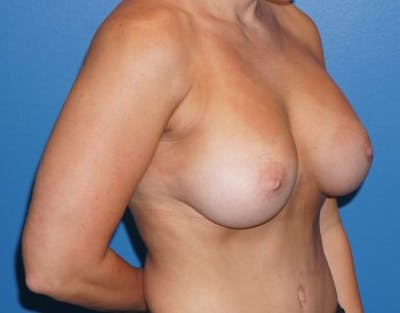 Breast Augmentation Gallery - Patient 5227291 - Image 4