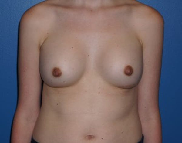 Breast Augmentation Gallery - Patient 5227292 - Image 2